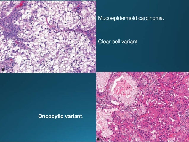 Salivary duct carcinoma. Immunohistochemistry. Carcinoma cells are diffusely positive for androgen receptor in their nucle...