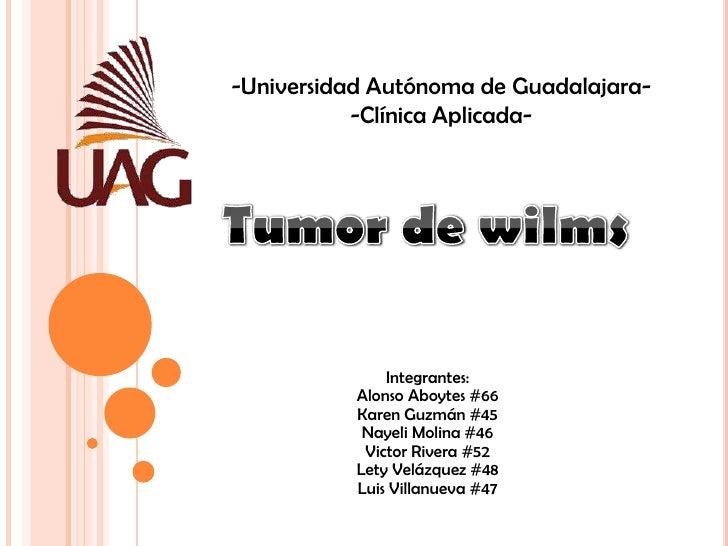-Universidad Autónoma de Guadalajara-<br />-Clínica Aplicada-<br />Tumor de wilms<br />Integrantes:Alonso Aboytes #66Karen...
