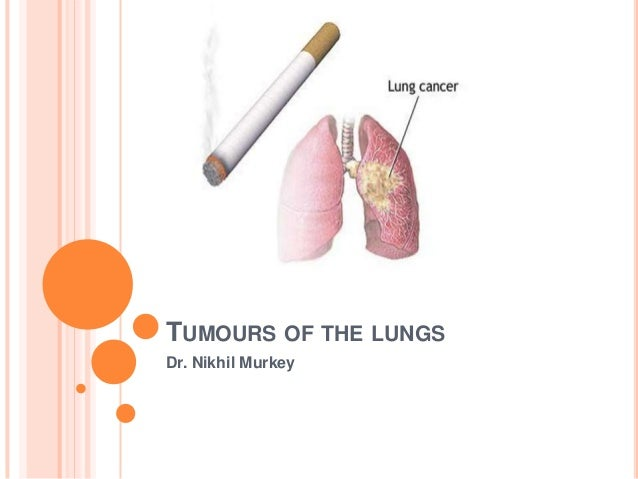 TUMOURS OF THE LUNGSDr. Nikhil Murkey