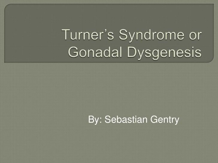 Turner's Syndrome or GonadalDysgenesis<br />By: Sebastian Gentry<br />