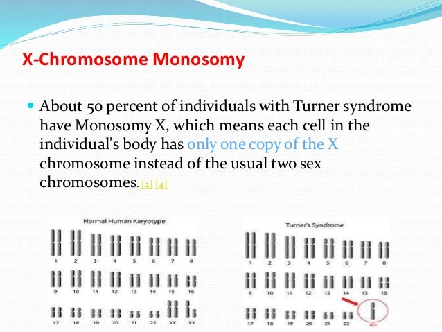 monosomy of the sex chromosome in Carrollton