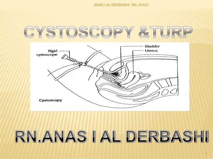 ANAS I AL DERBASHI .RN ,KHCC<br />CYSTOSCOPY &TURP<br />1<br />RN.ANAS I AL DERBASHI <br />