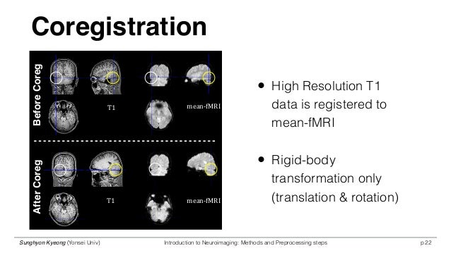 Co-Registration/Normalization - Questions and Answers in MRI