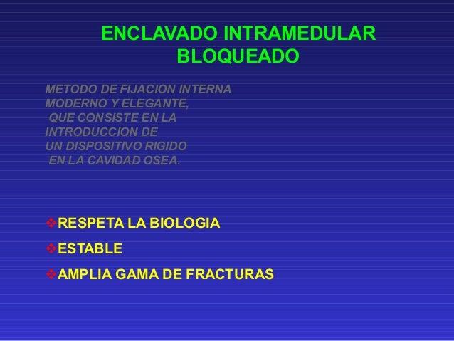 ENCLAVADO INTRAMEDULAR  BLOQUEADO  METODO DE FIJACION INTERNA  MODERNO Y ELEGANTE,  QUE CONSISTE EN LA  INTRODUCCION DE  U...