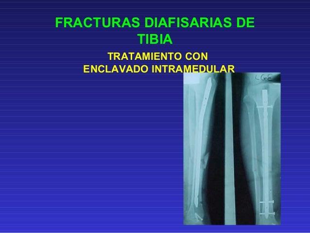 FRACTURAS DIAIFISARIAS  DE TIBIA