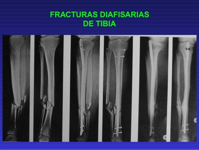 FRACTURAS DIAFISARIAS DE  DE LA TIBIA  ORTHOFIX