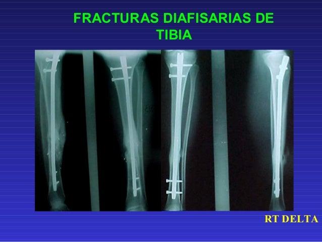 FRACTURAS DIAFISARIAS DE  HUMERO  TRATAMIENTO CON  ENCLAVADO INTRAMEDULAR RETROGRADO  12- B2 POS. OP. CONSOLIDACION