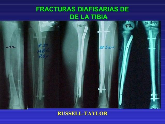 FRACTURAS DIAFISARIAS DE  HUMERO  TRATAMIENTO CON  ENCLAVADO INTRAMEDULAR RETROGRADO