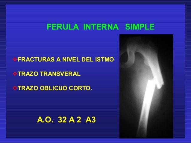 FERULA INTERNA SIMPLE  FRACTURAS A NIVEL DEL ISTMO  TRAZO TRANSVERAL  TRAZO OBLICUO CORTO.  A.O. 32 A 2 A3