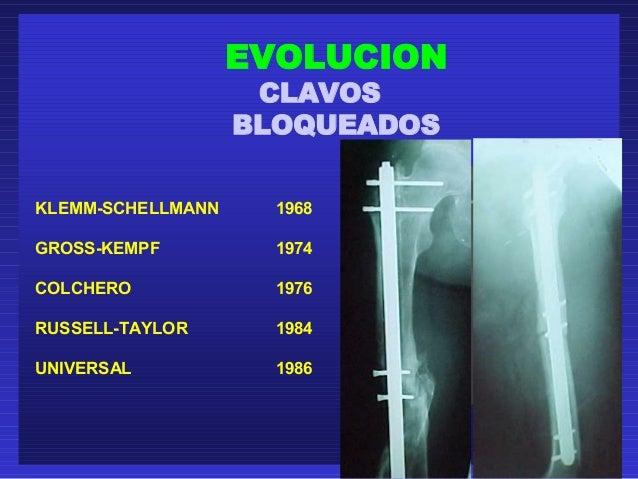 EVOLUCION  CLAVOS  BLOQUEADOS  KLEMM-SCHELLMANN 1968  GROSS-KEMPF 1974  COLCHERO 1976  RUSSELL-TAYLOR 1984  UNIVERSAL 1986