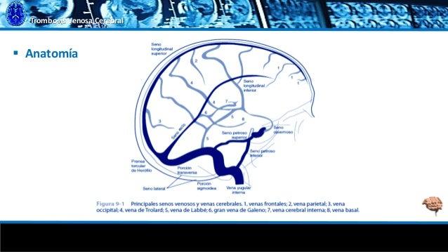 Trombosis Venosa Cerebral