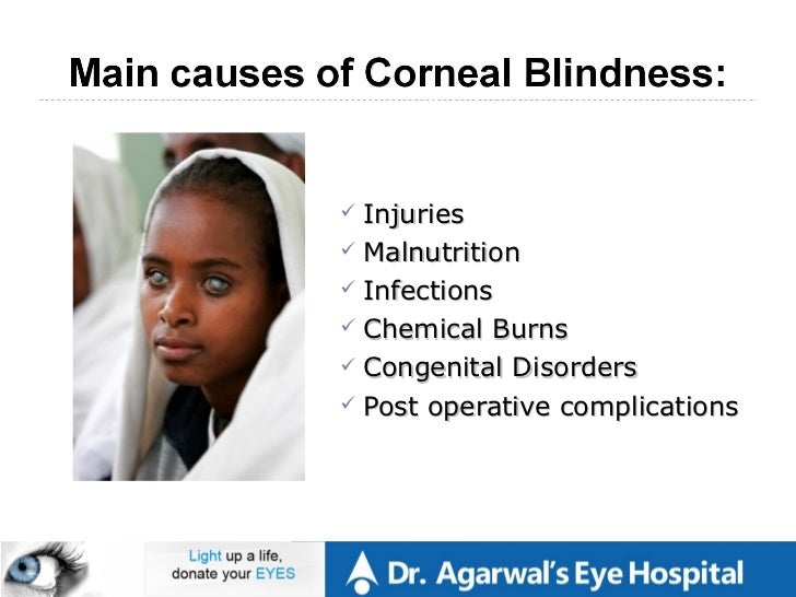 importance of eye donation speech