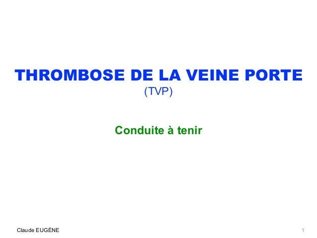 THROMBOSE DE LA VEINE PORTE (TVP) Conduite à tenir Claude EUGÈNE 1