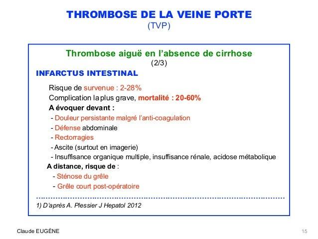 thrombose aigue