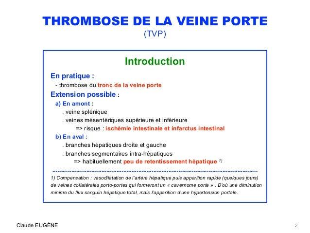 THROMBOSE DE LA VEINE PORTE (causes, signes, diagnostic, traitement) Slide 2