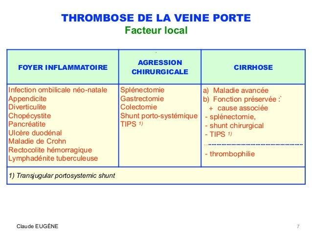 Thrombose de la veine porte causes signes diagnostic traitement - Thrombose de la veine porte ...