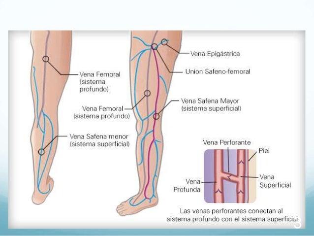 Por que preparado calmar el dolor a varikoze