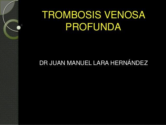 TROMBOSIS VENOSA PROFUNDA DR JUAN MANUEL LARA HERNÁNDEZ