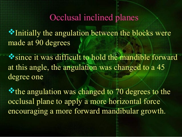 Occlusal inclined planes Initially the angulation between the blocks were made at 90 degrees since it was difficult to h...