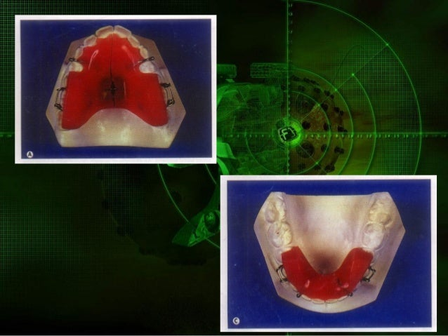 Since the upper arch is wider than the lower,it is necessary to cover only lingual cusps of upper posterior teeth rather t...