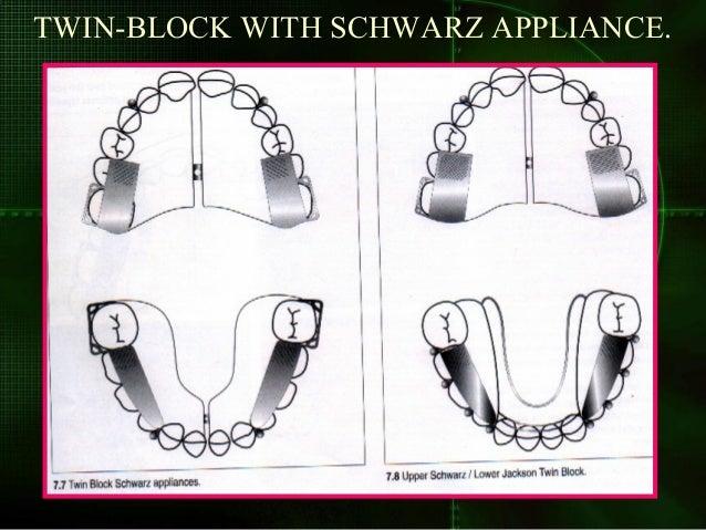 Twin block for sagittal development