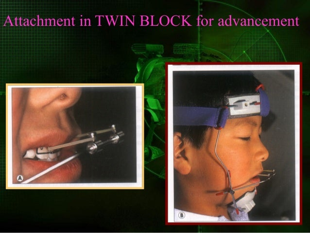 Advantages of twin blocks The twin block is the most comfortable , the most aesthetic and the most efficient of all the fu...