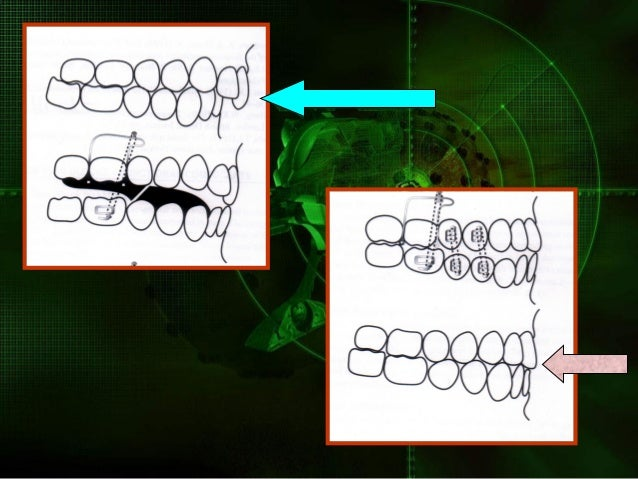 Aesthetics Twin blocks can be designed with no visible anterior wires without loosing efficiency Function The occlusal inc...