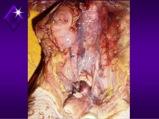 Twin Embolization Syndrome