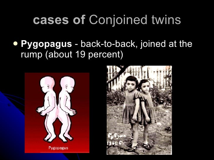 cases of  Conjoined twins <ul><li>Pygopagus  - back-to-back, joined at the rump (about 19 percent) </li></ul>