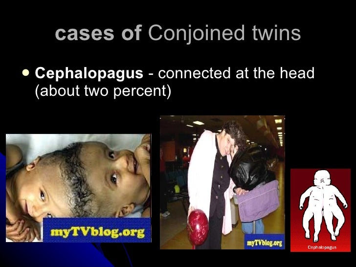 cases of  Conjoined twins <ul><li>Cephalopagus  - connected at the head (about two percent)  </li></ul>