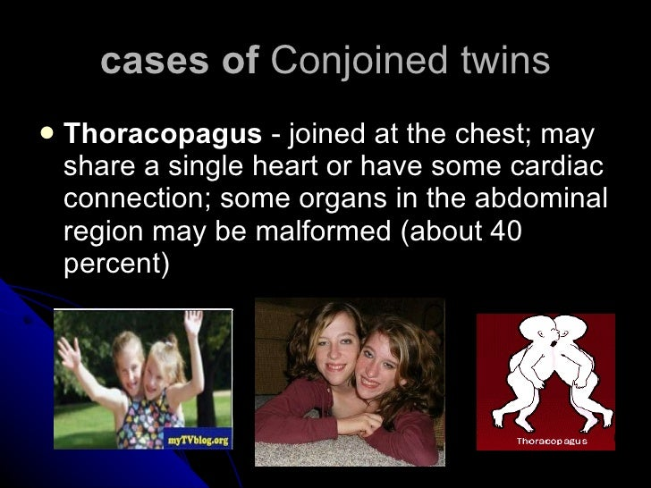 cases of  Conjoined twins <ul><li>Thoracopagus  - joined at the chest; may share a single heart or have some cardiac conne...