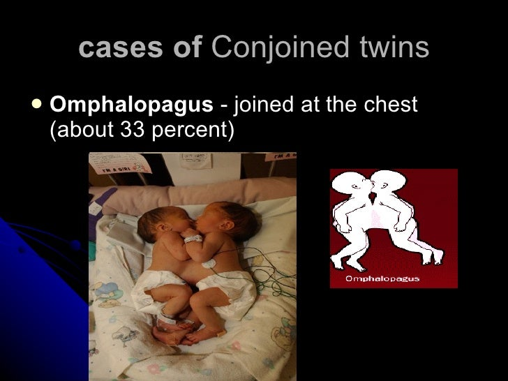 cases of  Conjoined twins <ul><li>Omphalopagus  - joined at the chest (about 33 percent)  </li></ul>