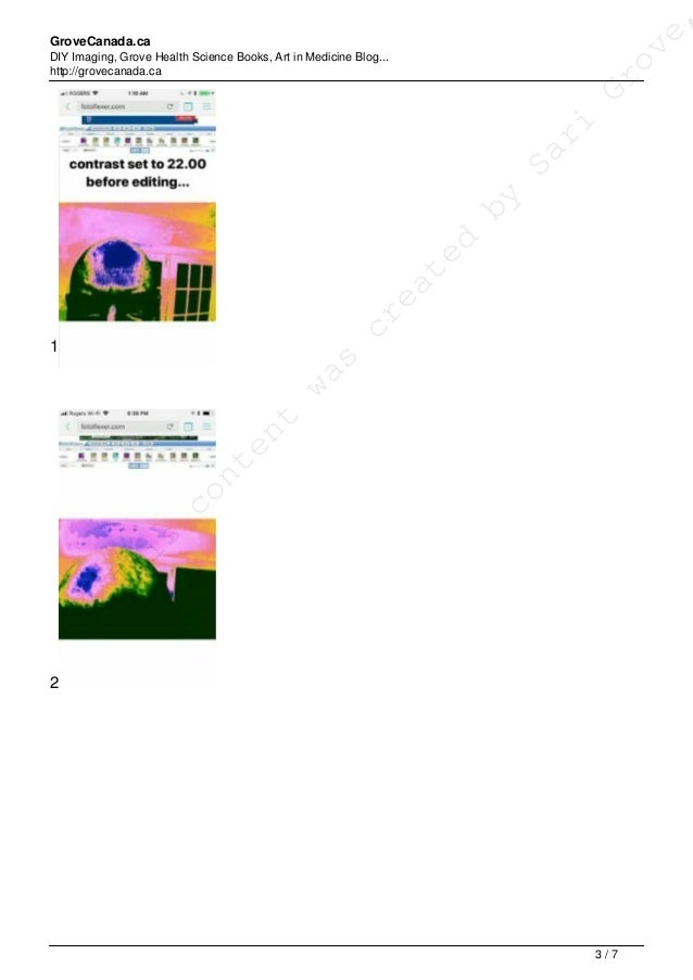 GroveCanada.ca DIY Imaging, Grove Health Science Books, Art in Medicine Blog... http://grovecanada.ca 1 2 This content was...