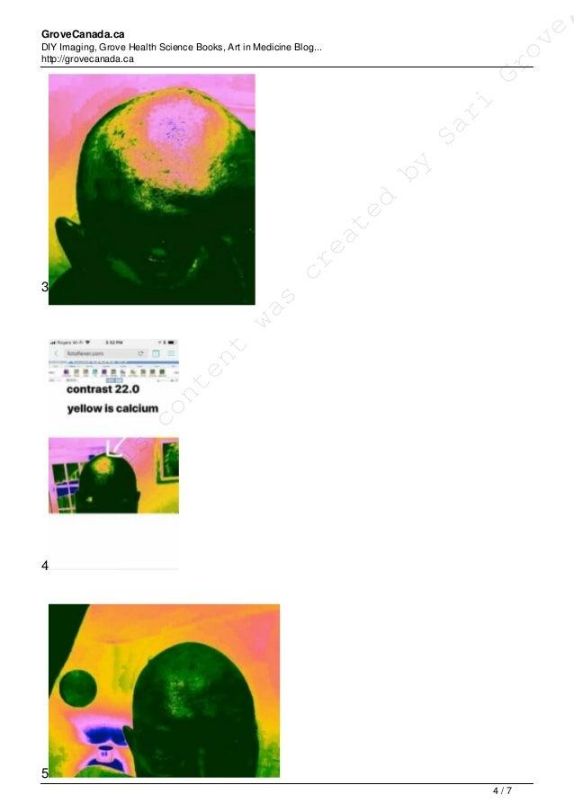 GroveCanada.ca DIY Imaging, Grove Health Science Books, Art in Medicine Blog... http://grovecanada.ca 3 4 5 This content w...