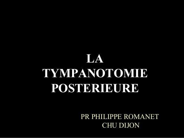 LATYMPANOTOMIE POSTERIEURE    PR PHILIPPE ROMANET          CHU DIJON