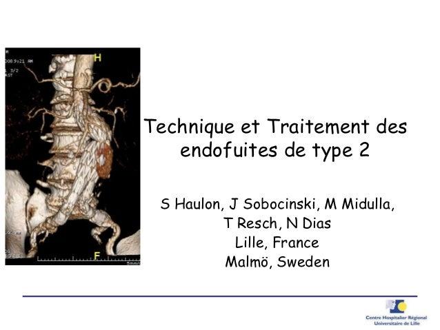 Technique et Traitement des endofuites de type 2 S Haulon, J Sobocinski, M Midulla, T Resch, N Dias Lille, France Malmö, S...