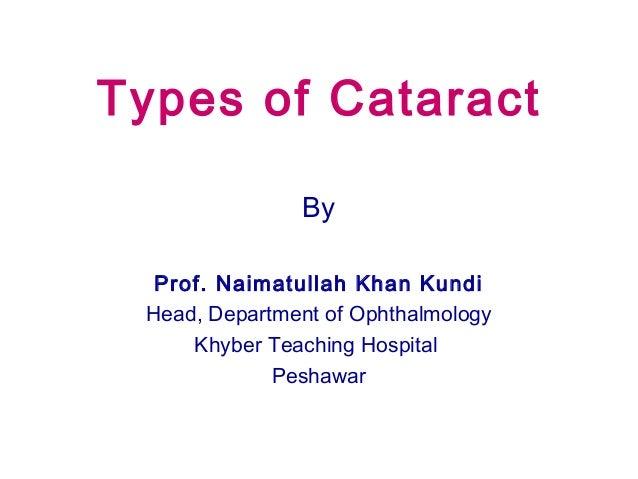 Types of Cataract By Prof. Naimatullah Khan Kundi Head, Department of Ophthalmology Khyber Teaching Hospital Peshawar