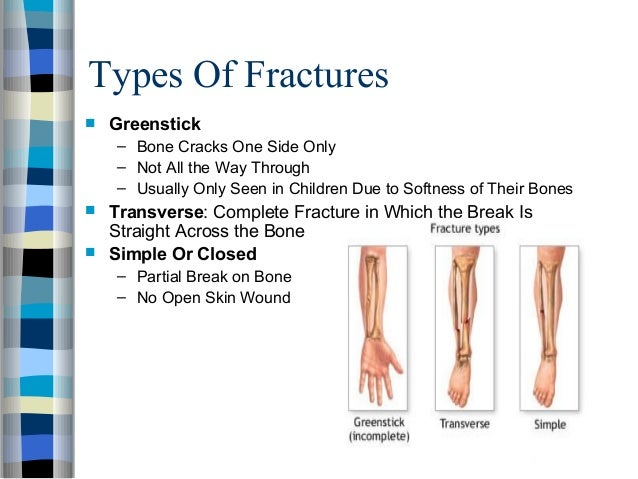 Types and classification of fractures
