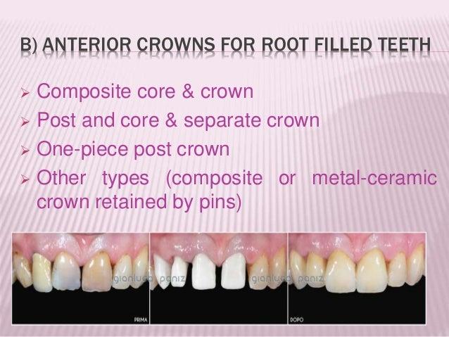 Types Of Crown Bridges