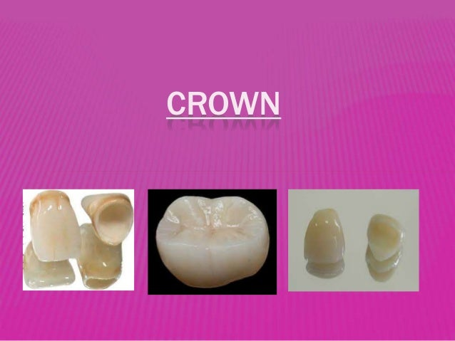 Types of crown & bridges