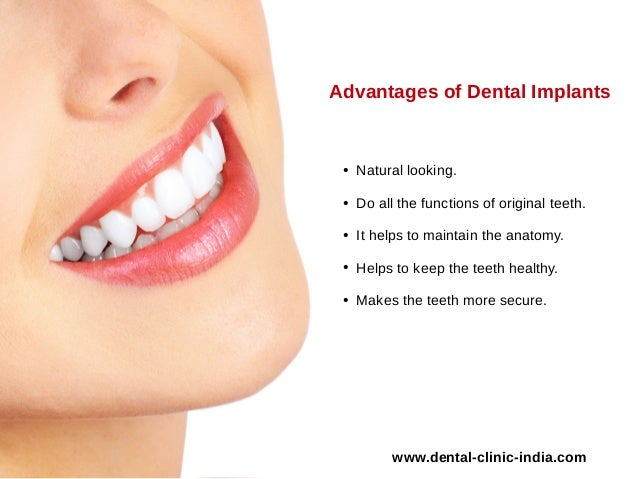 3 advantages of dental implants