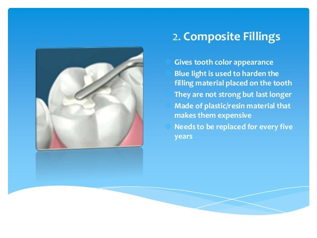 Different Types of Dental Tooth Fillings for Cavities