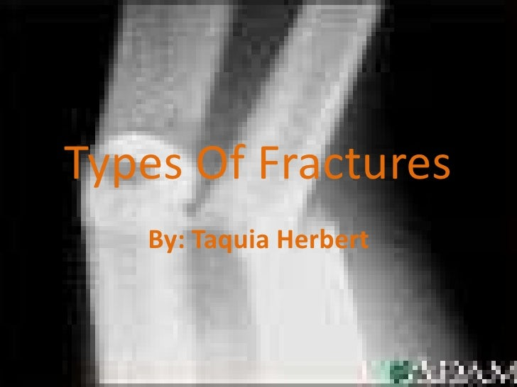 Types Of Fractures<br />By: Taquia Herbert<br />