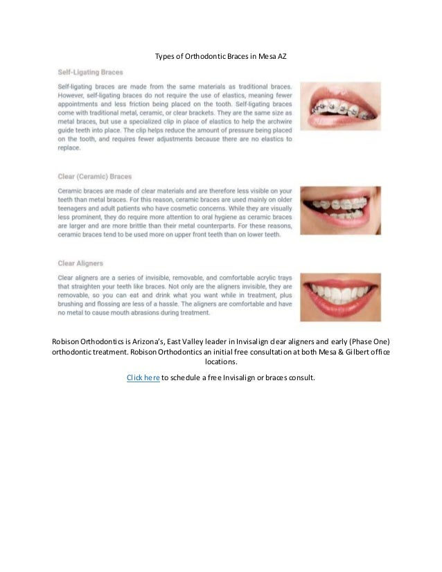 Types of Orthodontic Braces in Mesa AZ RobisonOrthodontics is Arizona's, East Valley leader in Invisalign clear aligners a...