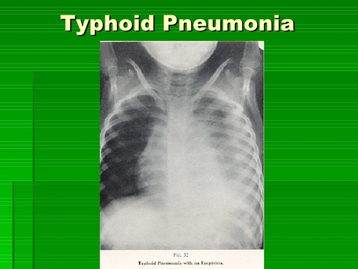 Typhoid Pneumonia   [email_address]