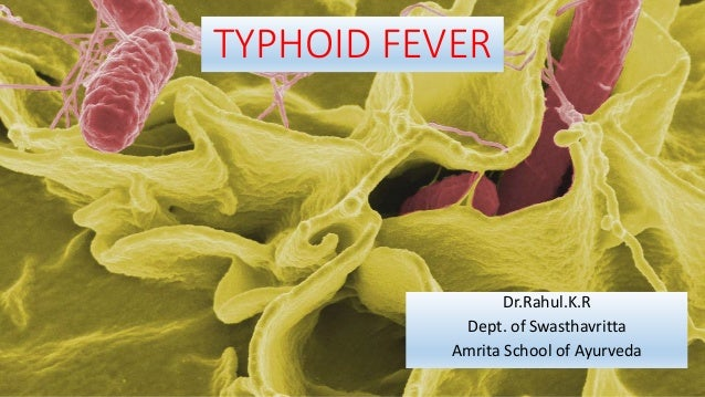 TYPHOID FEVER Dr.Rahul.K.R Dept. of Swasthavritta Amrita School of Ayurveda