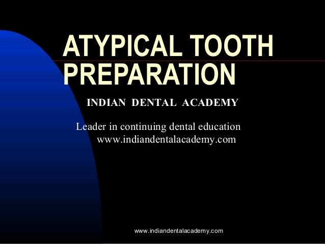 ATYPICAL TOOTH PREPARATION INDIAN DENTAL ACADEMY Leader in continuing dental education www.indiandentalacademy.com www.ind...