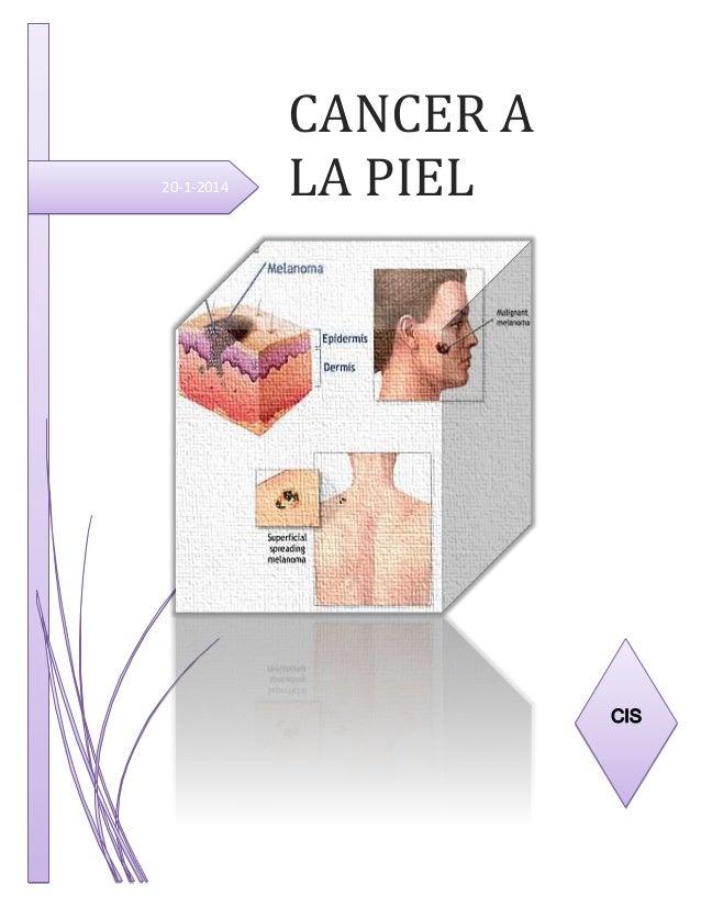 20-1-2014  CANCER A LA PIEL  CIS
