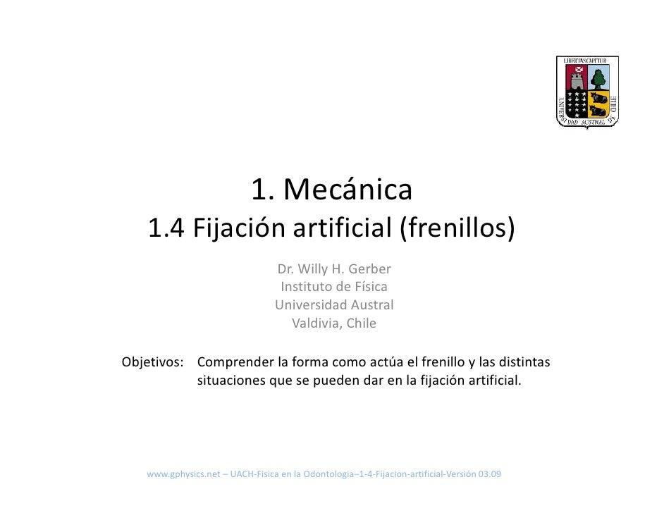 1. Mecánica     1.4 Fijación artificial (frenillos)                                    Dr. Willy H. Gerber                ...