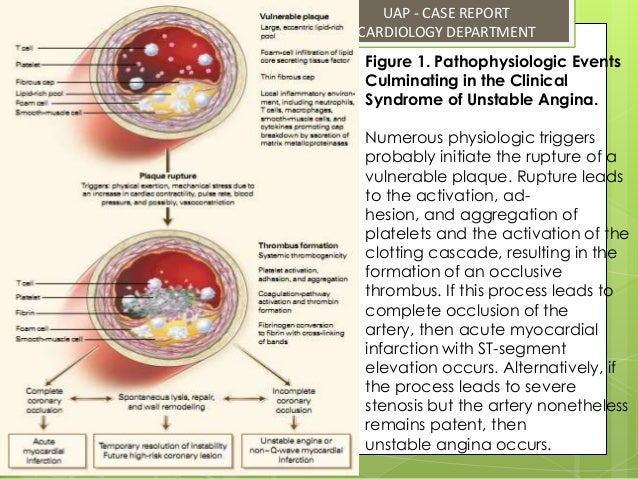 unstable angina pectoris, Skeleton